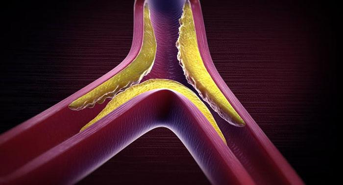 Hyperlipidämie Symptome, Ursachen, Behandlung