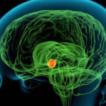 Hypothalamus: Anatomie, Funktion, Bedingungen, Gesundheitstipps