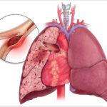 Lungenembolie: Ursachen, Symptome, Risikofaktoren, Behandlung