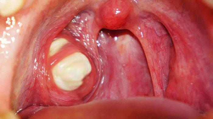 Mandelsteine (Tonsiliensteine) Ursachen, Symptome, Behandlungen, Entfernung, OP