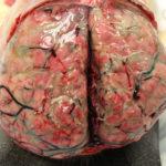 Meningitis: Symptome, Ursachen, Arten, Behandlung, Risiken