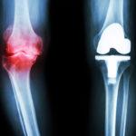 Osteoarthritis: Symptome, Behandlungen, Ursachen, Ernährung