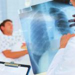 Pneumothorax (kollabierte Lunge): Arten, Symptome, Ursachen, Behandlung