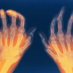 Rheumatoide Arthritis: Symptome, Ursachen, Behandlung, Diagnose, Ernährung