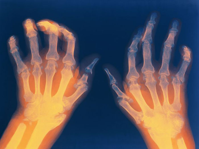 Rheumatoide Arthritis Symptome, Ursachen, Behandlung, Diagnose, Ernährung