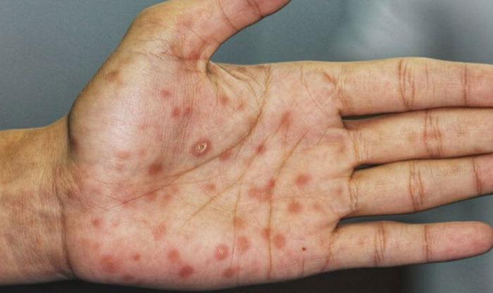 Symptome syphilis