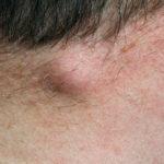 Talgzyste: Ursachen, Symptome, Behandlung