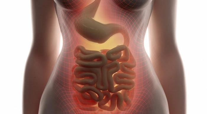 gastrointestinale Fistel Ursachen, Symptome und Behandlung Magen-Darm-Fistel