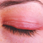 Augenlidentzündung (Blepharitis): Ursachen, Symptome, Behandlungen