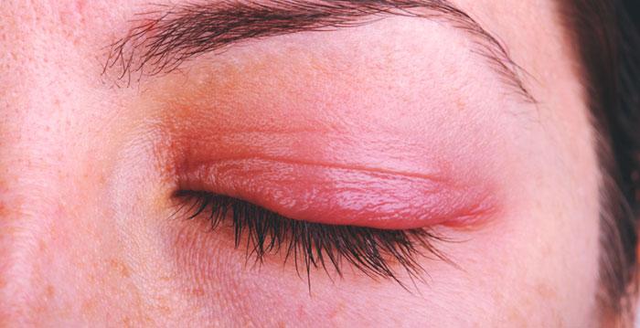 Augenlidentzündung (Blepharitis) Ursachen, Symptome, Behandlungen