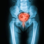 Blasenentzündung: Typen, Symptome, Ursachen, Behandlung, Diagnose
