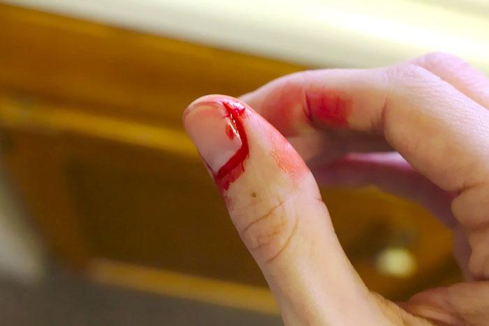 Blutungsstörung Symptome, Ursachen, Typen, Diagnose