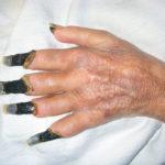 Gangrän: Definition, Symptome, Ursachen, Behandlung, Arten