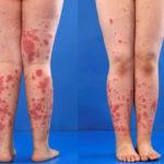Henoch-Schönlein Purpura: Symptome, Ursachen, Behandlung, Diagnose