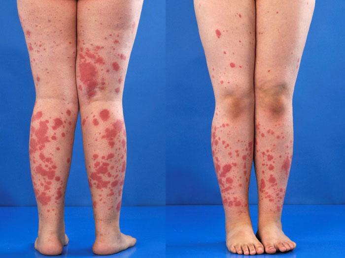 Henoch-Schönlein Purpura Symptome, Ursachen, Behandlung, Diagnose