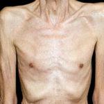 Kachexie: Definition, Ursachen, Behandlung