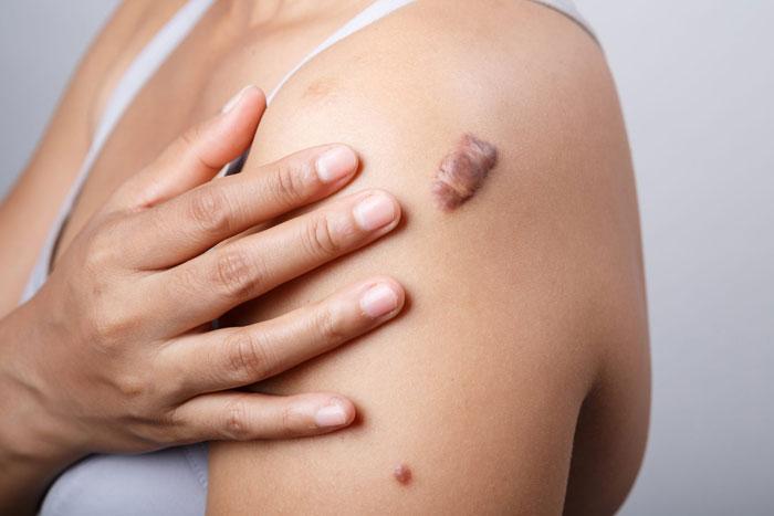 Keloidnarben Ursachen, Heimbehandlung, OP, vs. hypertrophe Narben