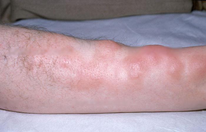 Myxödem Symptome, Ursachen, Behandlung, Koma