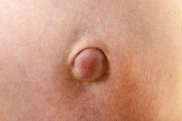 Nabelbruch Ursachen, Symptome, Diagnose, Behandlung, Operation