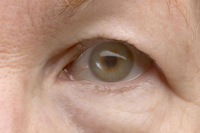 Ptose hängendes Augenlid Ursachen, Behandlung