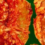 Pyelonephritis: Symptome, Ursachen, Behandlung