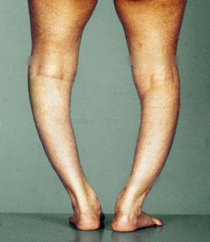 Rachitis Ursachen, Symptome, Diagnose, Behandlung