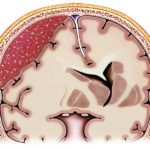 Subduralhämatom: Symptome, Diagnose, Behandlung, OP