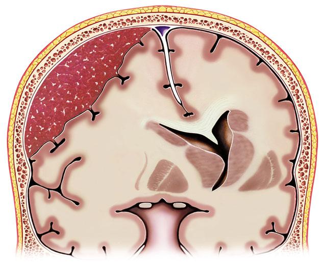 Subduralhämatom Symptome, Diagnose, Behandlung, OP