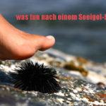 Symptome von Seeigel-Stich und Heimbehandlung