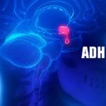 Unangemessenes antidiuretisches Hormon (abnormale ADH) - Ursachen, Symptome, Behandlung