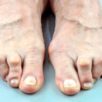 Was ist Autoimmunarthritis? ist rheumatoide Arthritis gehört zu Autoimmunarthritis?