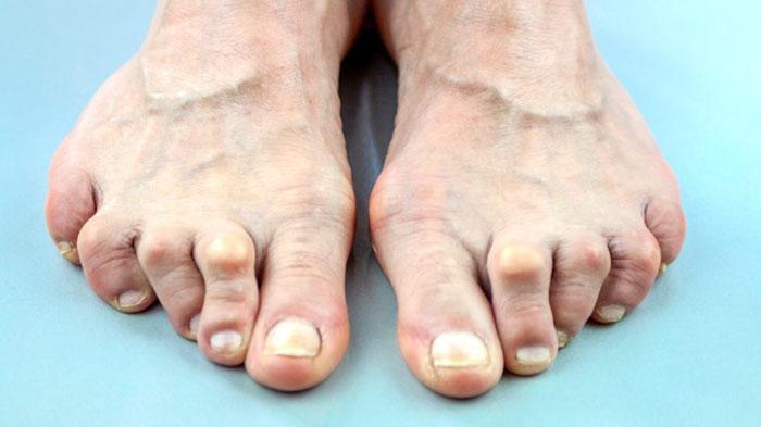 Was ist Autoimmunarthritis ist rheumatoide Arthritis gehört zu Autoimmunarthritis