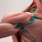 Was ist Thoracic-outlet-Syndrom (Thoraxausgangssyndrom)?
