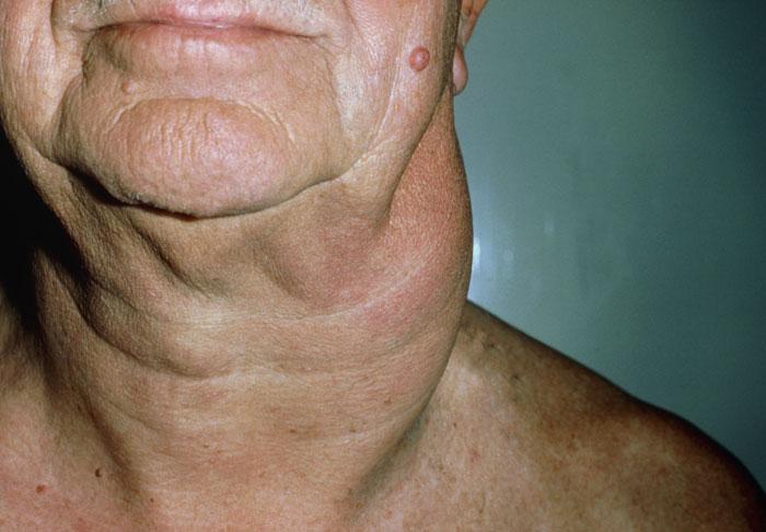 Was ist die Morbus Hodgkin Häufige Symptome, Diagnose, Behandlung, Prognose
