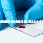 Was ist ein ALT-Test (Alanin-Aminotransferase)? Alles darüber