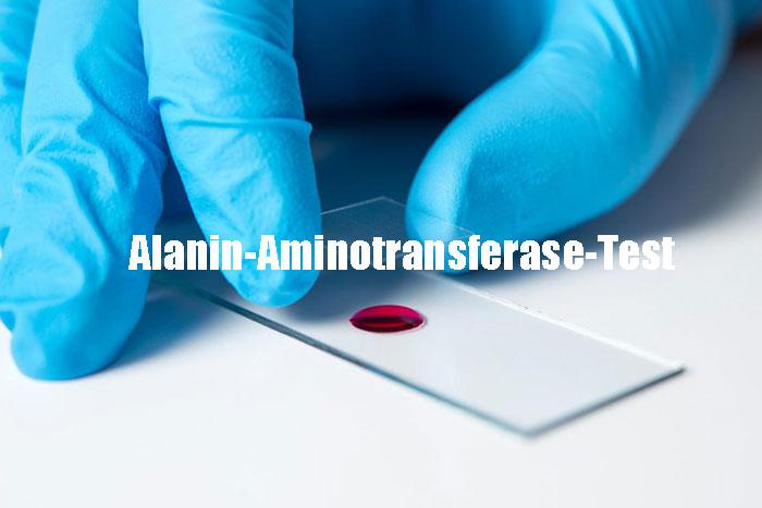 Was ist ein ALT-Test (Alanin-Aminotransferase) Alles darüber