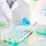 Was ist ein ELISA-Test (enzymgebundener Immunosorbent-Assay)?