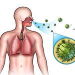Was ist eine akute Infektion der oberen Atemwege? | Wiki