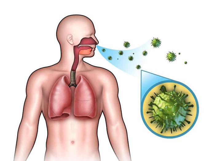 Was ist eine akute Infektion der oberen Atemwege Wiki