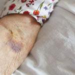 Was ist senile Purpura? Ursachen und Behandlung