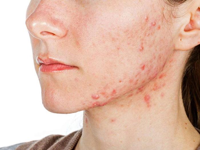 Was verursacht zystische Akne Wie kann man es zu Hause behandeln