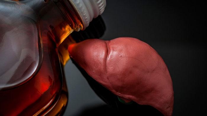 alkoholbedingte Lebererkrankungen Typen, Symptome, Behandlung
