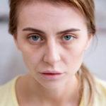 heller Teint (Blässe, blasse Gesichtsfarbe): Ursachen, Behandlung, Ist das normal?