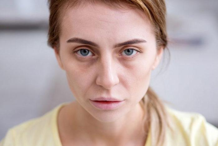 heller Teint (Blässe, blasse Gesichtsfarbe) Ursachen, Behandlung, Ist das normal