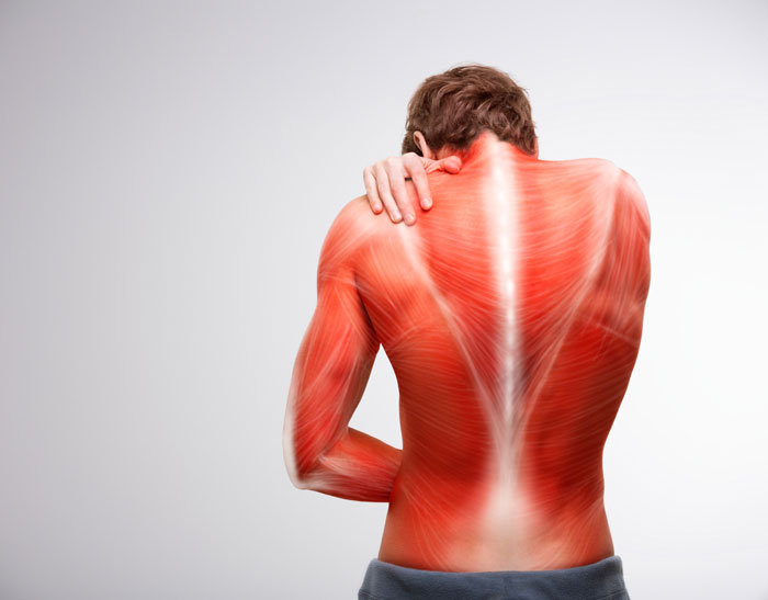 warum meine Muskeln schmerzen häufige Ursachen, Heimbehandlung, wann ein Arzt aufsuchen