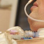 was ist eine tracheostomie, ist sie sicher oder gefährlich?