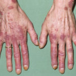 wie wirkt sich lupus auf ihren körper aus?