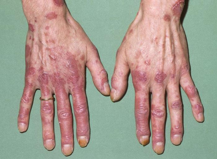 wie wirkt sich lupus auf ihren körper aus