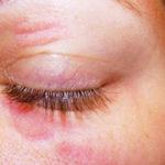Augenlid-Dermatitis: Ursachen, Behandlung, Symptome und mehr