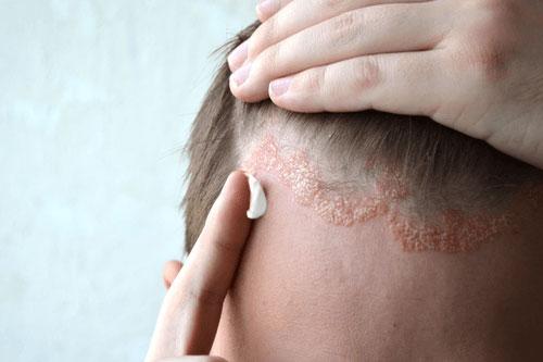Bilder von Kopfhaut-Psoriasis